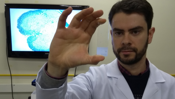 Spider molecule may help in the treatment of multiple sclerosis