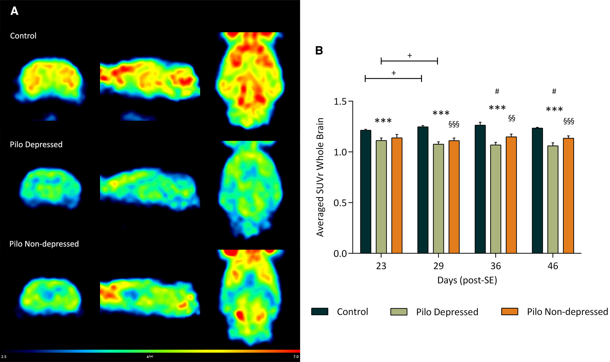 MicroPET test images show a reduction in glucose metabolism in both groups of epileptic animals, with and without depression, as compared to healthy groups. The warmer colors (red-yellow) mean higher glucose consumption in the brain whereas colder ones (green-blue) indicate lower consumption. However, the decrease in brain activity is higher in the group with both pathologies./Image: Epilepsia journal