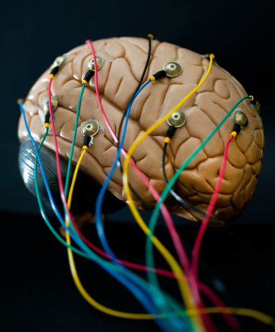 Cérebro com fios