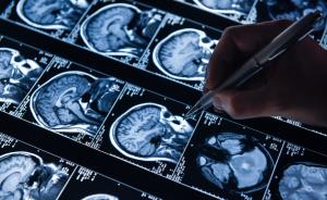 Imagens de ressonância magnética