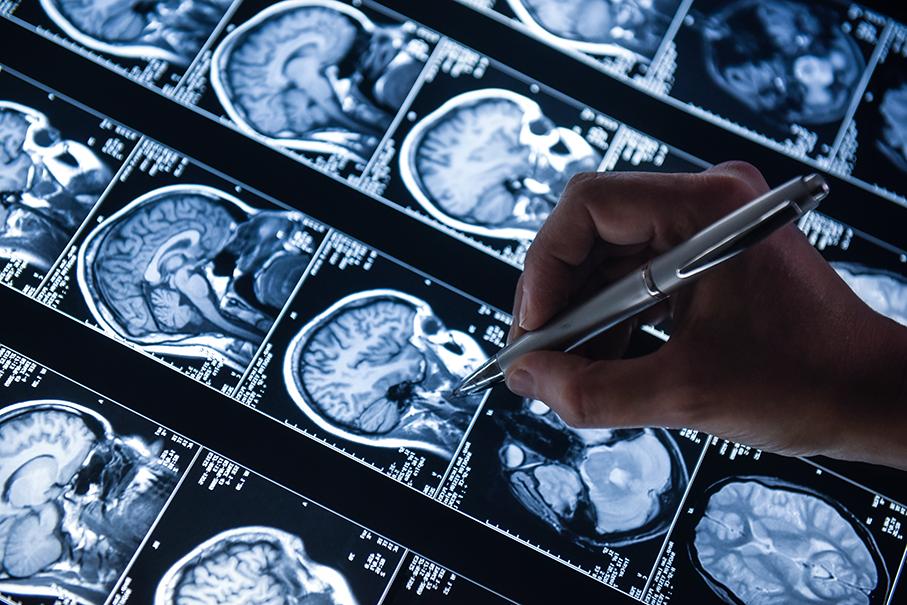 pós em medicina, neurologia, tomografia