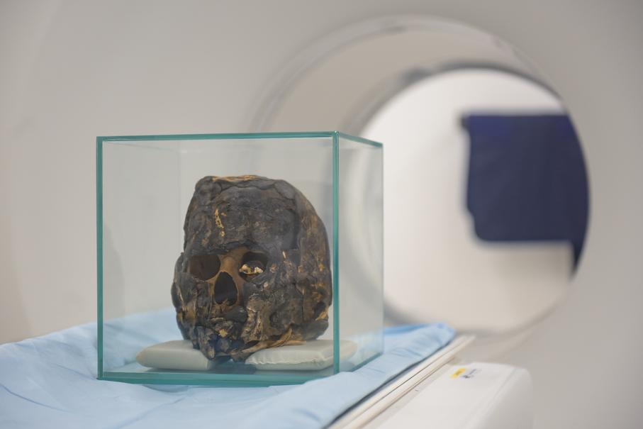 Tomografia Múmia, Inscer, Ir. Edison
