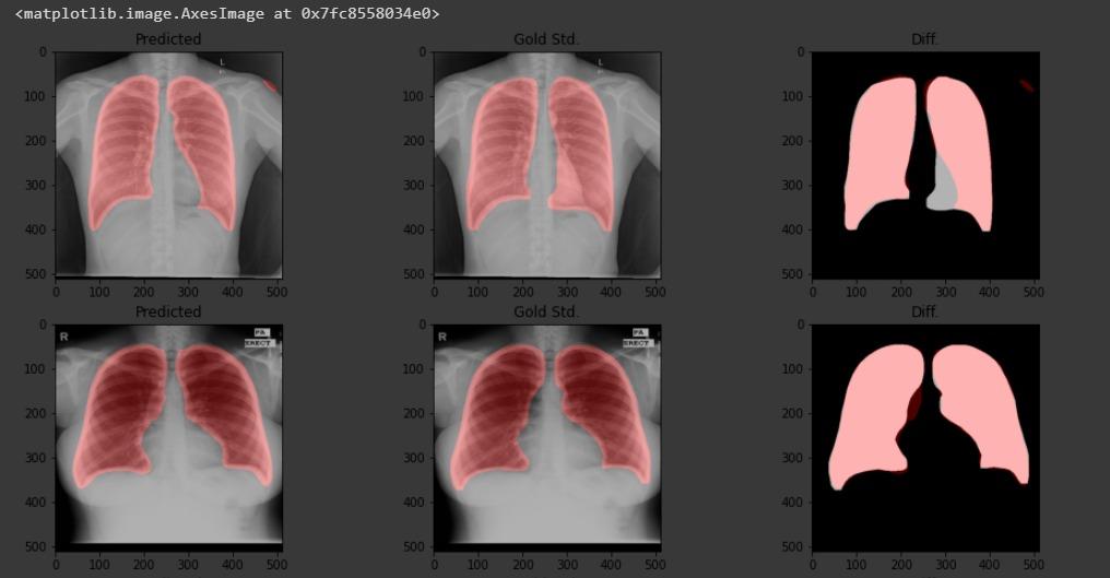 covid-19, radiografias e tomografias